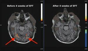 Un Studiu Stiintific Care Demonstreaza Eficienta Tehnicilor EFT In Reducerea Poftelor 2